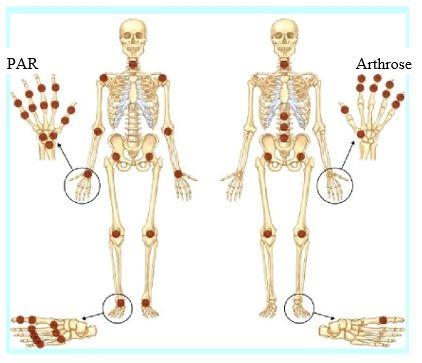 image arthrite